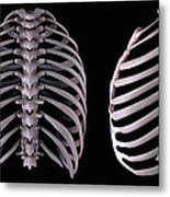 Multiple View Of The Rib Cage Metal Print