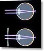 Myopia Or Short Sightedness Poster Metal Print