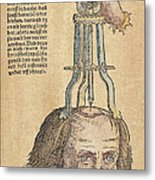Skull Operation, 1517 Metal Print