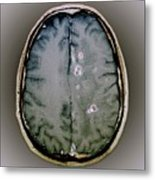 Tapeworm Cysts In The Brain Metal Print