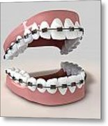 Teeth Fitted With Braces Metal Print by Allan Swart