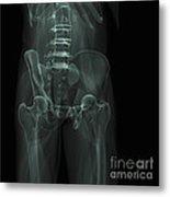 The Bones Of The Pelvis Metal Print