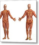 Trigger Points On The Human Body Metal Print