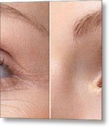Womans Eye With And Without Wrinkles Metal Print