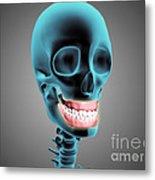 X-ray View Of Human Skeleton Showing Metal Print