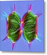 Xanthidium Desmids, Light Micrograph Metal Print by Science Photo Library