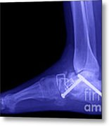 Ankle Fracture Metal Print