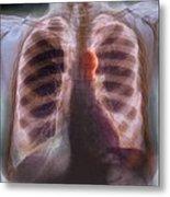 Aortic Aneurysm, X-ray Metal Print by
