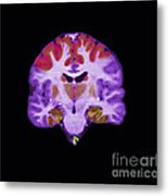 Brain Areas Affected By Alzheimers Metal Print