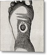 Christ's Stigmata, 17th Century Metal Print