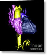 Color Enhanced 3d Cta Of Heart Metal Print