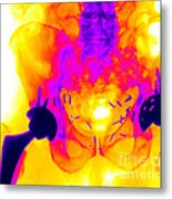 Double Hip Replacement Metal Print