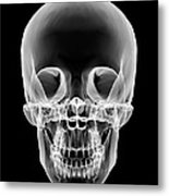 Human Skull, X-ray Artwork Metal Print