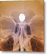 Intracranial Berry Aneurysm, X-ray Metal Print