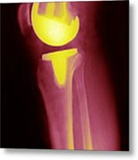 Knee Replacement X-ray Metal Print