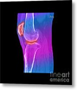 Knee Showing Osteoporosis Metal Print