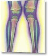 Knock-knee, X-ray Metal Print