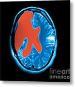 Mri Shows Near Total Hemispherectomy Metal Print by Medical Body Scans
