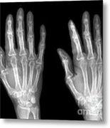Normal Hand Metal Print