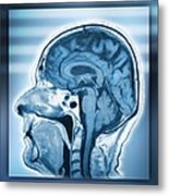 Normal Head And Brain, Mri Scan Metal Print
