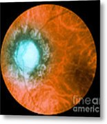 Retina Infected By Syphilis Metal Print