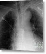 X-ray Of Implanted Defibulator Metal Print
