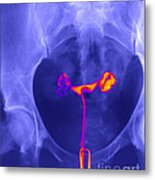 X-ray Of Ovaries Metal Print