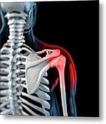 Shoulder Pain, Conceptual Artwork Metal Print