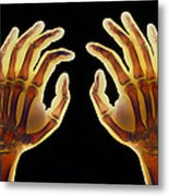 Coloured X-ray Of Healthy Human Hands Metal Print