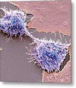 Dividing Hela Cells, Sem Metal Print