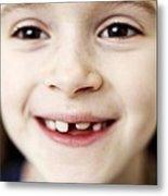 Loss Of Milk Teeth Metal Print