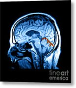 Mri Of Alcoholism Related Vermian Metal Print