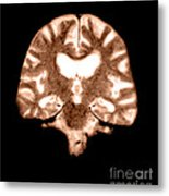 Mri Of Brain With Alzheimers Disease Metal Print