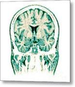 Normal Coronal Mri Of The Brain Metal Print
