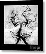 Angiogram Of Embolus In Cerebral Artery Metal Print