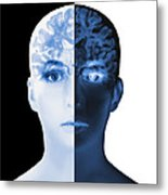 Brain Scan Metal Print