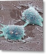Dividing Cancer Cell, Sem Metal Print