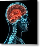 Head Anatomy, Artwork Metal Print