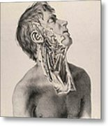 Historical Anatomical Illustration Metal Print