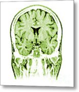 Normal Coronal Mri Of The Brain Metal Print by Medical Body Scans