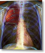 Pneumonia, X-ray Metal Print