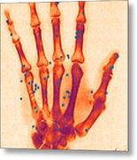 X-ray Of Gunshot In The Hand Metal Print