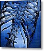 Torso Skeleton Metal Print