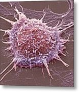 Cervical Cancer Cell, Sem Metal Print