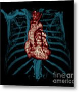 3d Ct Reconstruction Of Heart Metal Print