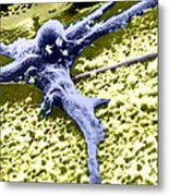 Malignant Cancer Cell Metal Print