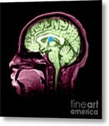Mri Colloid Cyst Of Third Ventricle Metal Print