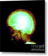 Pagets Disease Metal Print