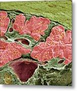 Pancreas Tissue, Sem Metal Print