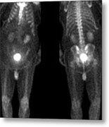 Bone Scan Metal Print by Medical Body Scans